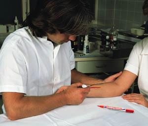 Применение Медицинского маркера для кожи E-8020